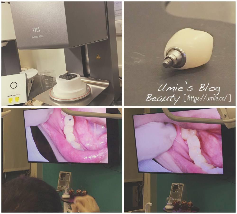 台北牙醫推薦悅庭牙醫|2小時就搞定假牙(牙套)、植牙!3D掃描技術,再也不用來回花時間等假牙了!