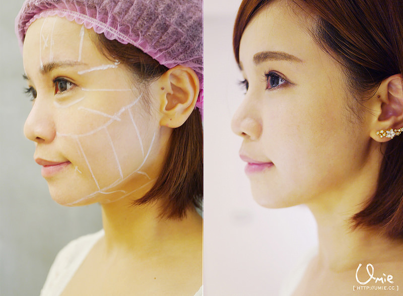 超越電波拉皮!Ulthera 超音波拉提(極線音波拉提)讓我維持巴掌臉少女肌